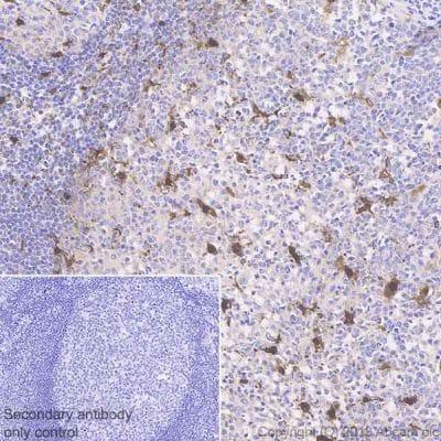 Immunohistochemistry (Formalin/PFA-fixed paraffin-embedded sections) - Anti-IL-18 antibody [EPR19954-188] (ab243091)
