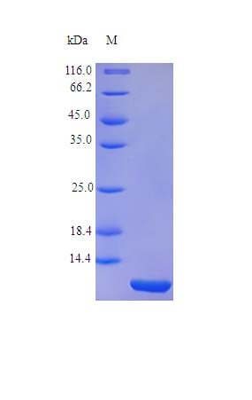 SDS-PAGE - Recombinant rhesus monkey GM-CSF protein (Active) (ab243115)
