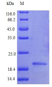 SDS-PAGE - Recombinant mouse G-CSF protein (Active) (ab243120)