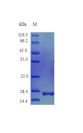 SDS-PAGE - Recombinant human Estrogen Inducible Protein pS2 (Active) (ab243155)