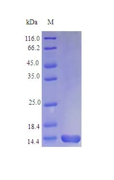 SDS-PAGE - Recombinant horse IL1 Receptor I/IL-1R-1 protein (Active) (ab243214)