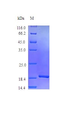 SDS-PAGE - Recombinant rhesus monkey IL-16 protein (Active) (ab243225)