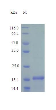 SDS-PAGE - Recombinant mouse C10 protein (Active) (ab243257)