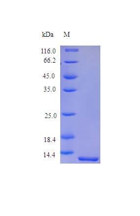 SDS-PAGE - Recombinant human Melanoma Inhibitory Activity protein (Active) (ab243272)