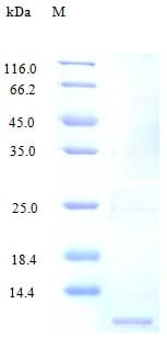 SDS-PAGE - Recombinant human CCL14 protein (Active) (ab243282)