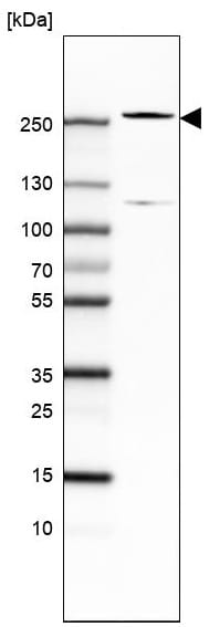 Western blot - Anti-Tet2 antibody [CL6873] (ab243323)