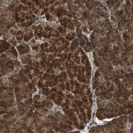 Immunohistochemistry (Formalin/PFA-fixed paraffin-embedded sections) - Anti-HBXIP antibody (ab243326)