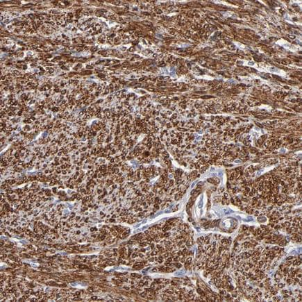Immunohistochemistry (Formalin/PFA-fixed paraffin-embedded sections) - Anti-SLMAP antibody (ab243383)