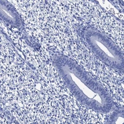 Immunohistochemistry (Formalin/PFA-fixed paraffin-embedded sections) - Anti-CABYR antibody (ab243417)