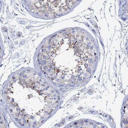 Immunohistochemistry (Formalin/PFA-fixed paraffin-embedded sections) - Anti-FAM183A antibody (ab243432)
