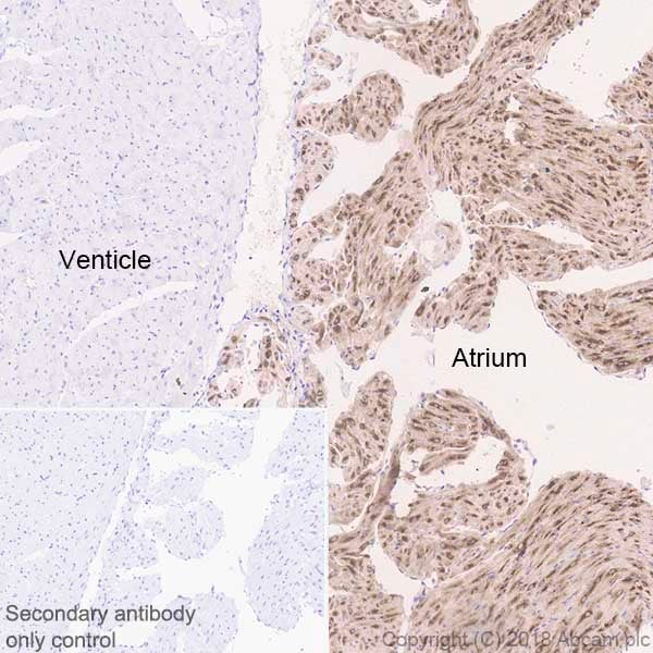 Immunohistochemistry (Formalin/PFA-fixed paraffin-embedded sections) - Anti-BNP antibody [EPR22339-65] (ab243440)