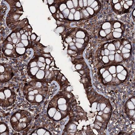 Immunohistochemistry (Formalin/PFA-fixed paraffin-embedded sections) - Anti-ZSWIM8 antibody (ab243442)