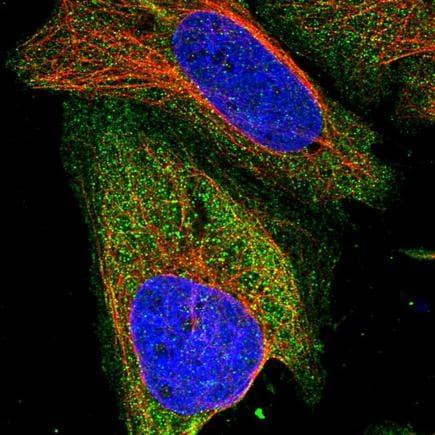 Immunocytochemistry/ Immunofluorescence - Anti-ZSWIM8 antibody (ab243442)