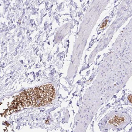 Immunohistochemistry (Formalin/PFA-fixed paraffin-embedded sections) - Anti-EPB42 antibody (ab243449)