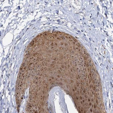 Immunohistochemistry (Formalin/PFA-fixed paraffin-embedded sections) - Anti-C2CD3 antibody (ab243455)