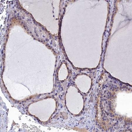 Immunohistochemistry (Formalin/PFA-fixed paraffin-embedded sections) - Anti-RABGAP1 antibody (ab243466)