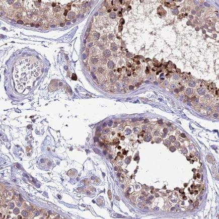 Immunohistochemistry (Formalin/PFA-fixed paraffin-embedded sections) - Anti-THAP5 antibody (ab243478)