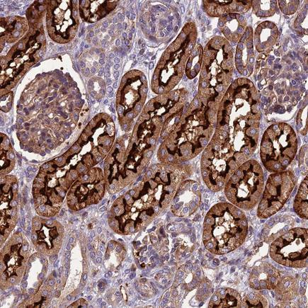 Immunohistochemistry (Formalin/PFA-fixed paraffin-embedded sections) - Anti-ARSK antibody (ab243501)