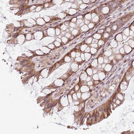 Immunohistochemistry (Formalin/PFA-fixed paraffin-embedded sections) - Anti-CHCH antibody (ab243505)