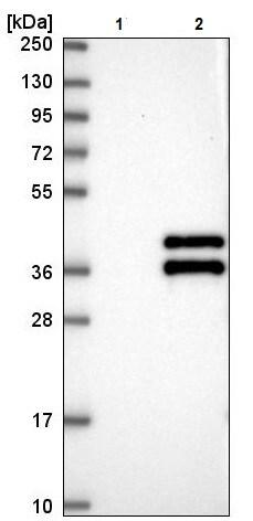 Western blot - Anti-Vgl4 antibody (ab243518)