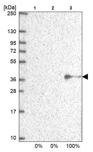 Western blot - Anti-NUBP1 antibody (ab243521)