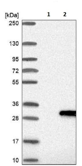 Western blot - Anti-LYG2 antibody (ab243533)