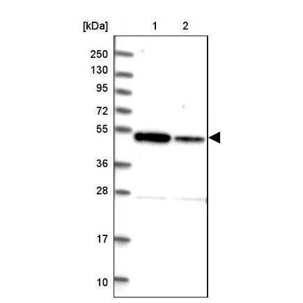 Western blot - Anti-ZNF662 antibody (ab243540)