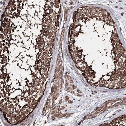 Immunohistochemistry (Formalin/PFA-fixed paraffin-embedded sections) - Anti-ZNF662 antibody (ab243540)