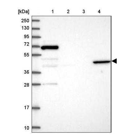 Western blot - Anti-ANGPTL5 antibody (ab243541)