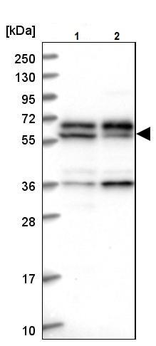 Western blot - Anti-C15orf52 antibody (ab243542)