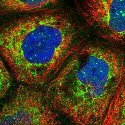 Immunohistochemistry (Formalin/PFA-fixed paraffin-embedded sections) - Anti-LYSMD2 antibody (ab243545)