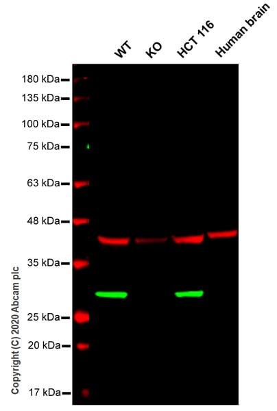 Western blot - Anti-RAB8A antibody [MJF-R22-79-3] - BSA and Azide free (ab243568)