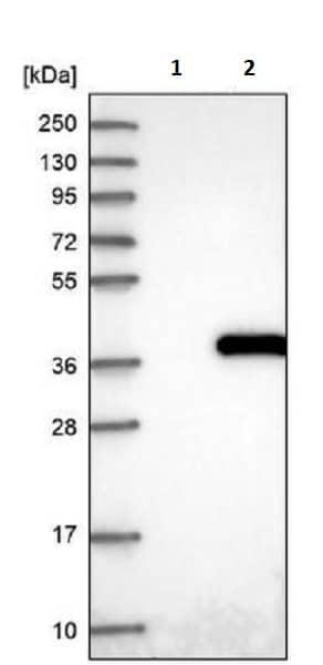 Western blot - Anti-NUDT22 antibody (ab243577)