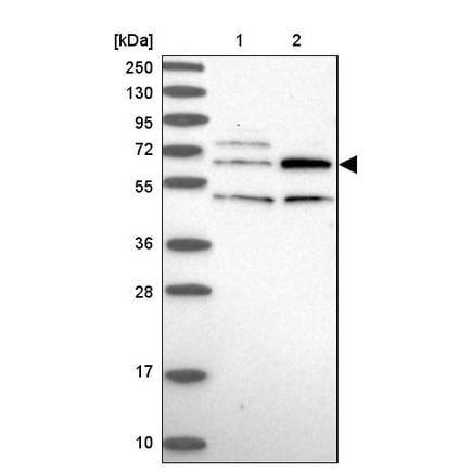 Western blot - Rabbit Polyclonal to TBC1D19 (ab243578)