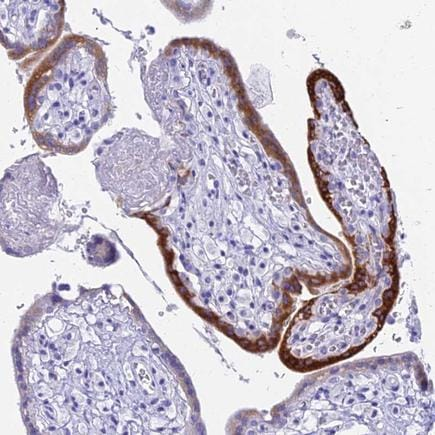 Immunohistochemistry (Formalin/PFA-fixed paraffin-embedded sections) - Anti-hCG beta antibody (ab243581)