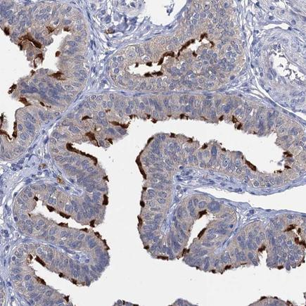 Immunohistochemistry (Formalin/PFA-fixed paraffin-embedded sections) - Anti-ANKRD42 antibody (ab243585)