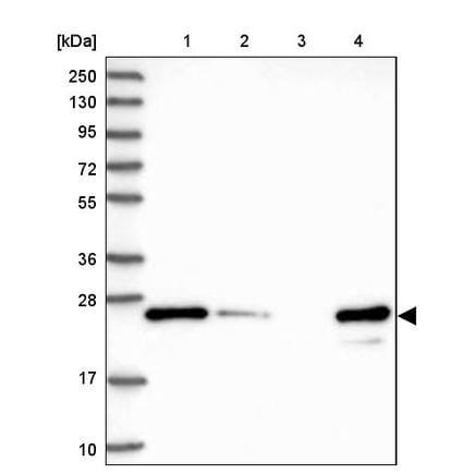 Western blot - Anti-MMAB antibody (ab243596)