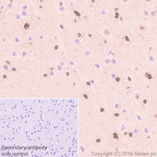 Immunohistochemistry (Formalin/PFA-fixed paraffin-embedded sections) - Anti-ADK antibody [EPR23166-143] (ab243636)