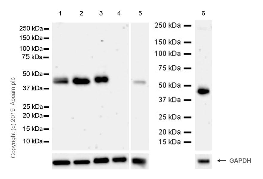 Western blot - Anti-ADK antibody [EPR23166-143] (ab243636)