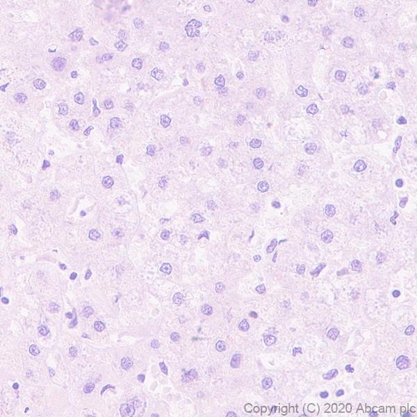 Immunohistochemistry (Formalin/PFA-fixed paraffin-embedded sections) - Anti-PRDM1/Blimp1 antibody [EPR23186-11] (ab243653)