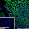 Immunohistochemistry (Frozen sections) - Anti-Carbonic Anhydrase 9/CA9 antibody [EPR23055-5] (ab243660)