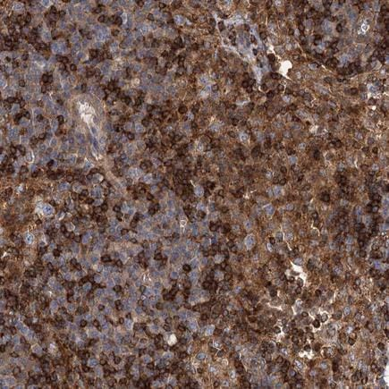 Immunohistochemistry (Formalin/PFA-fixed paraffin-embedded sections) - Anti-PACS1 antibody (ab243703)