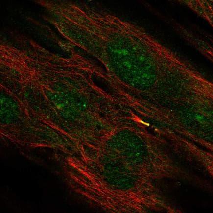 Immunocytochemistry/ Immunofluorescence - Anti-TMEM117 antibody (ab243705)