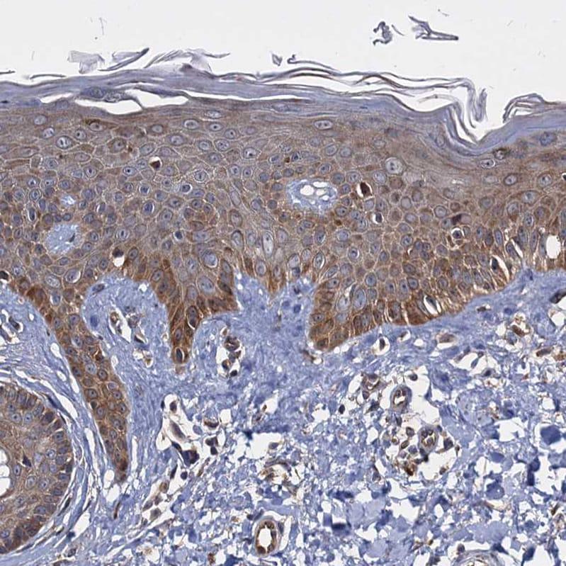 Immunohistochemistry (Formalin/PFA-fixed paraffin-embedded sections) - Anti-WWC3 antibody (ab243715)