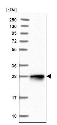 Western blot - Anti-NUDT8 antibody (ab243729)