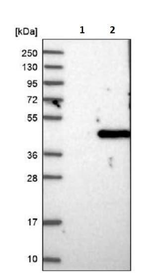 Western blot - Anti-TGDS antibody (ab243735)