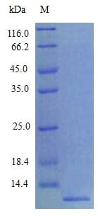 SDS-PAGE - Recombinant mouse MCP2 protein (Active) (ab243756)