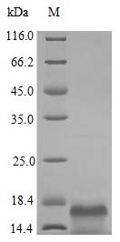 SDS-PAGE - Recombinant human MCSF protein (Active) (ab243795)