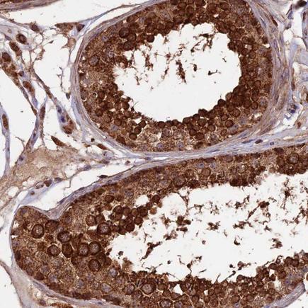 Immunohistochemistry (Formalin/PFA-fixed paraffin-embedded sections) - Anti-RABL5 antibody (ab243807)