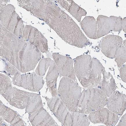 Immunohistochemistry (Formalin/PFA-fixed paraffin-embedded sections) - Anti-TCTN2 antibody (ab243814)